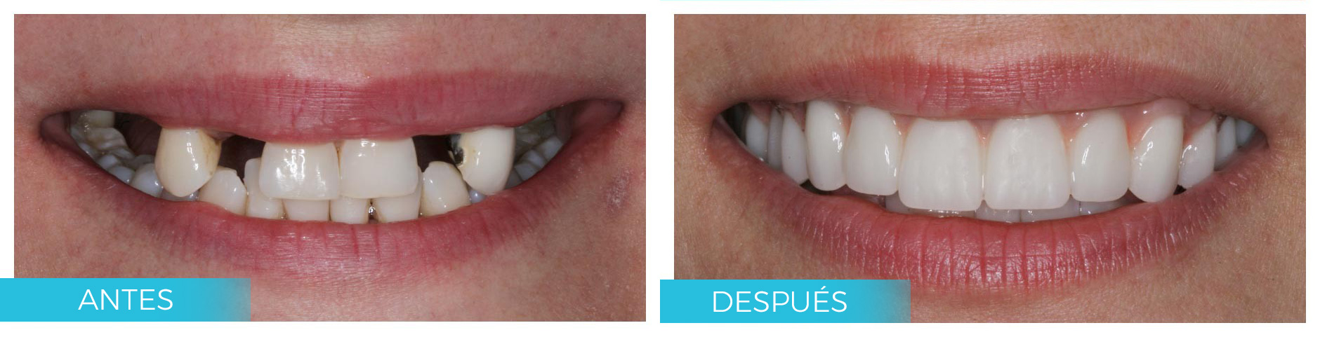 ANTES-DESPUES-IMPLANTES-V2