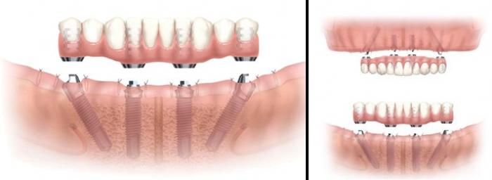 Implantes Dental Reverte