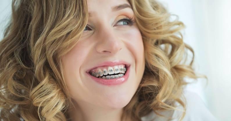 ortodoncia adultos sagunto