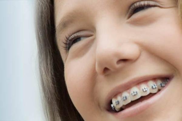 ortodoncia sagunto